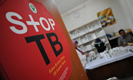 Drug-resistant tuberculosis poses global threat, warn doctors
